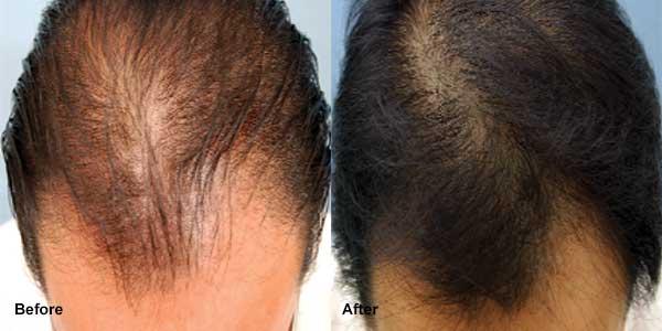 علاج تساقط الشعر بالبلازما