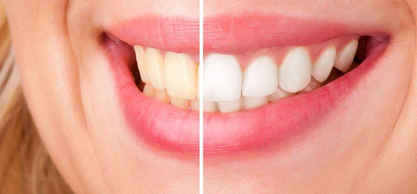 تبيض الاسنان بالزوم قبل وبعد