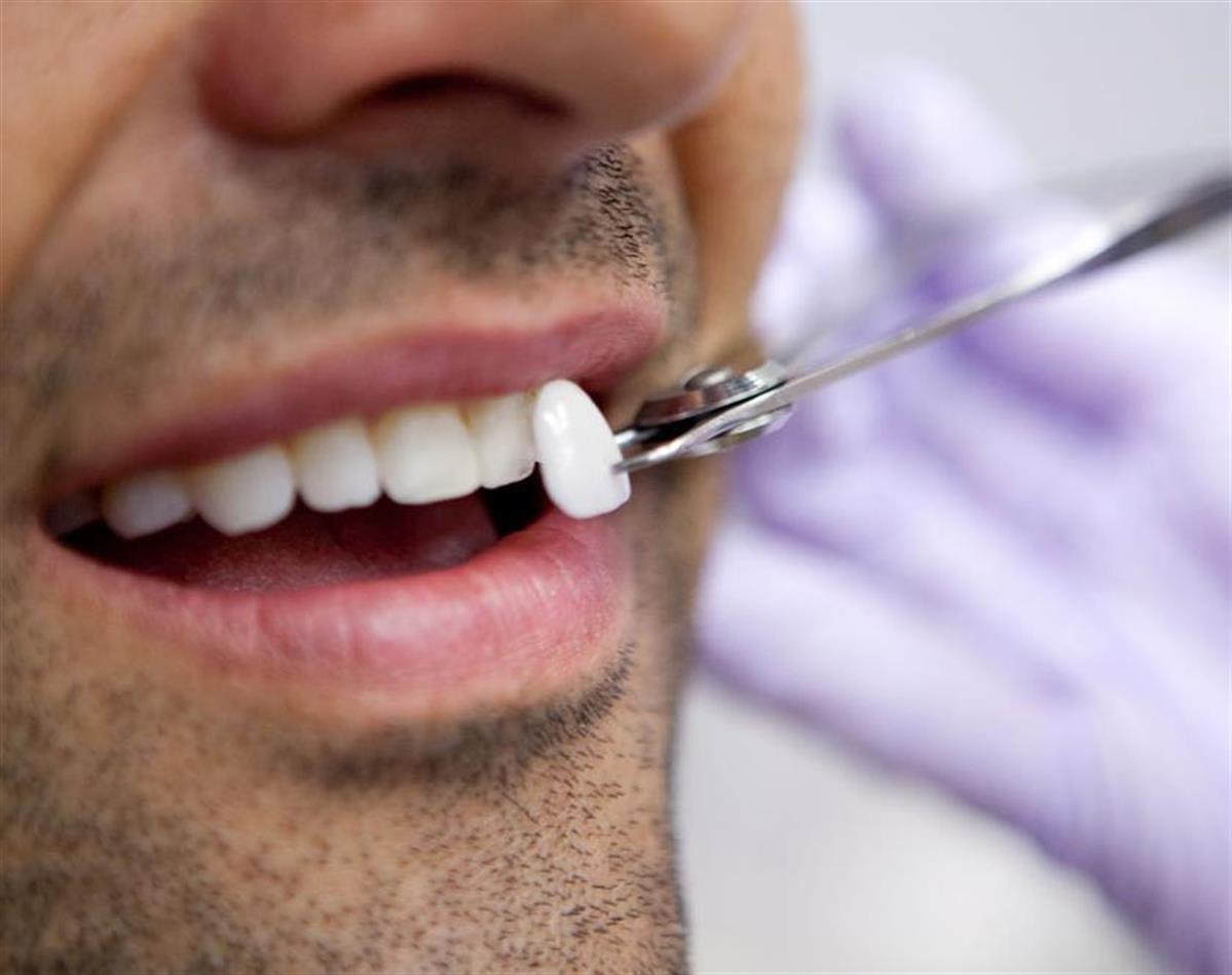 ابتسامة هوليود فينير الاسنان