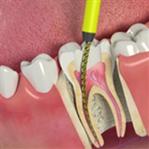 سحب عصب الاسنان