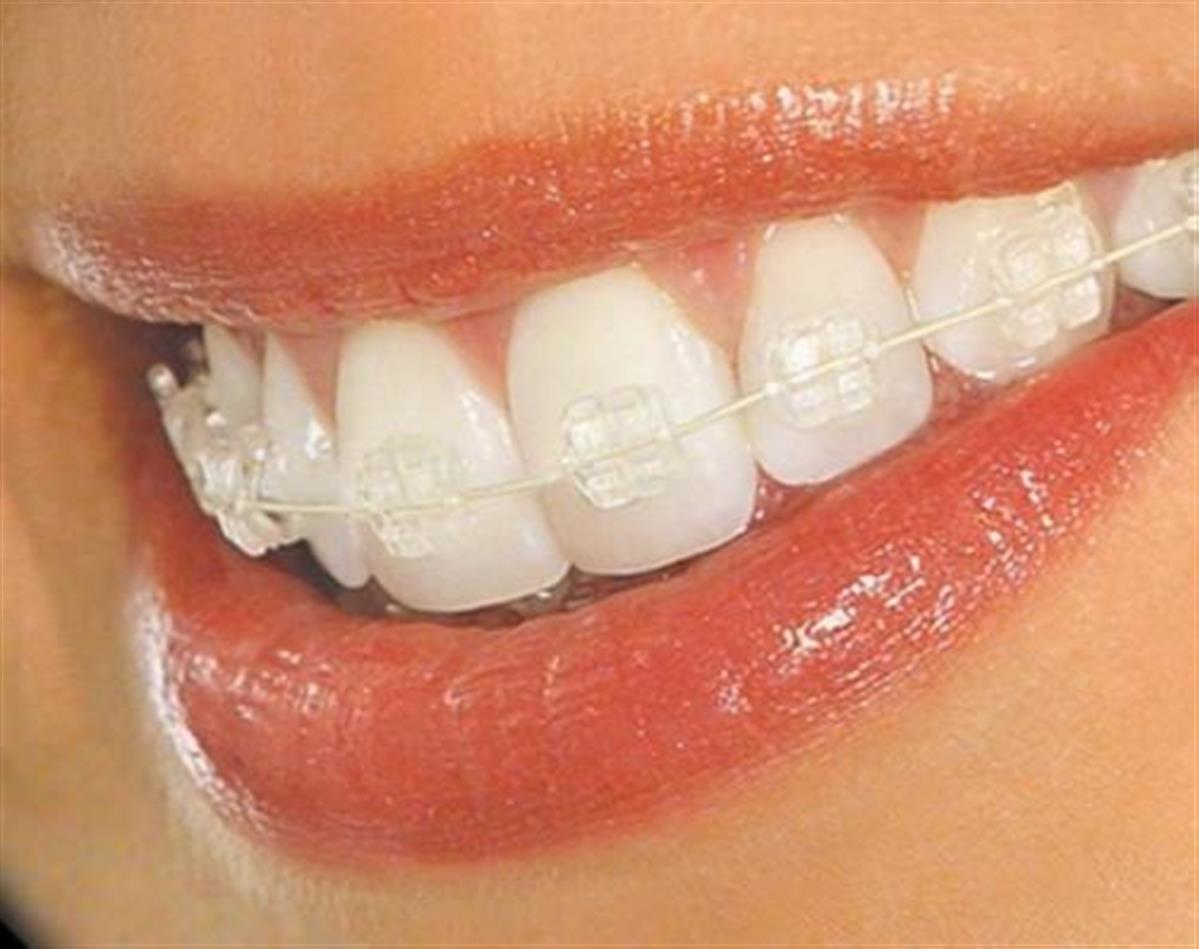 تقويم الاسنان كريستال الشارقة اوركيد الامارات عيادة اسنان