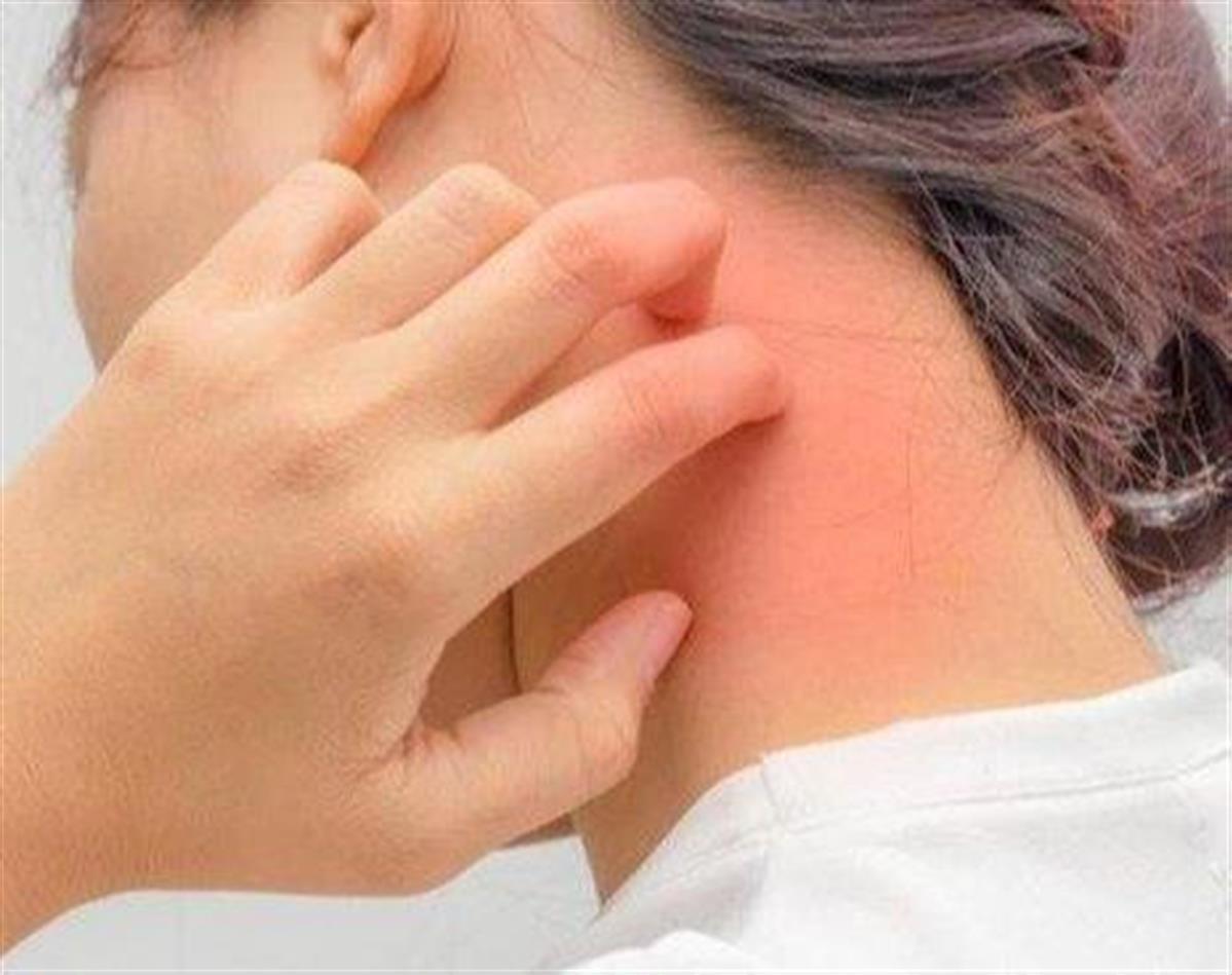 علاج الصدفية و البهاق الشارقة الامارات عيادة جلدية اوركيد