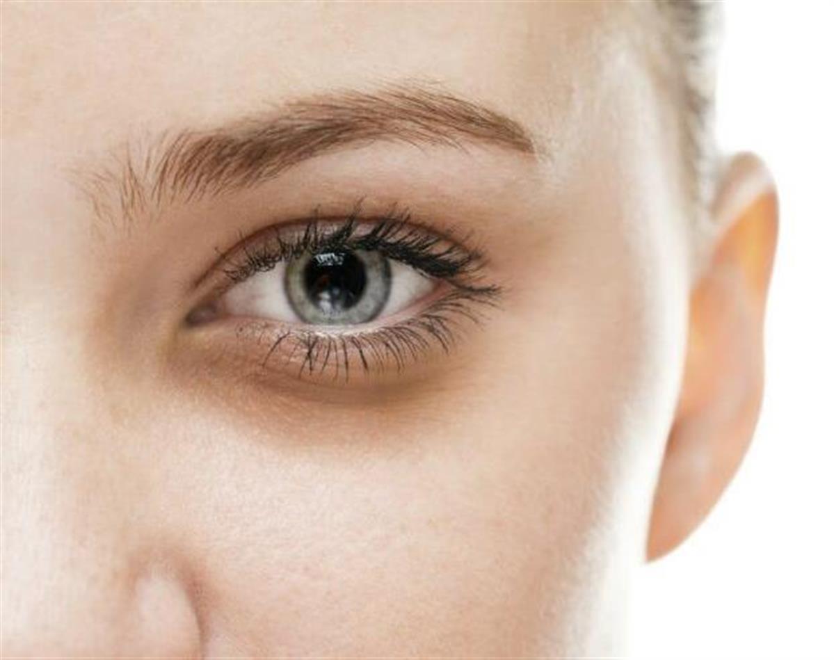 علاج الهالات السوداء حول العين مركز اوركيد الشارقة الامارات عيادة