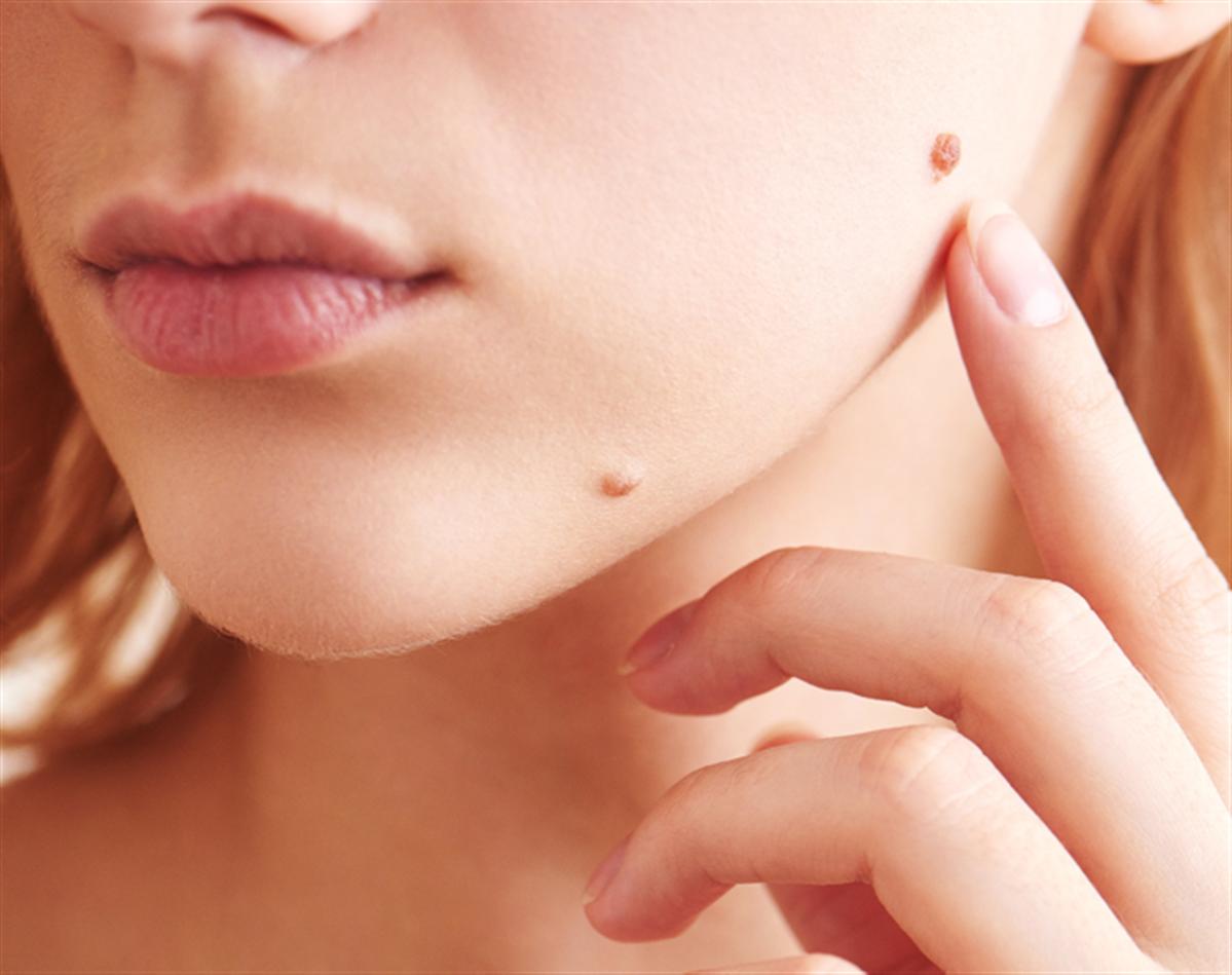 ازالة الثآليل و الزوائد اللحمية مركز اوركيد الشارقة الامارات عيادة الجلدية